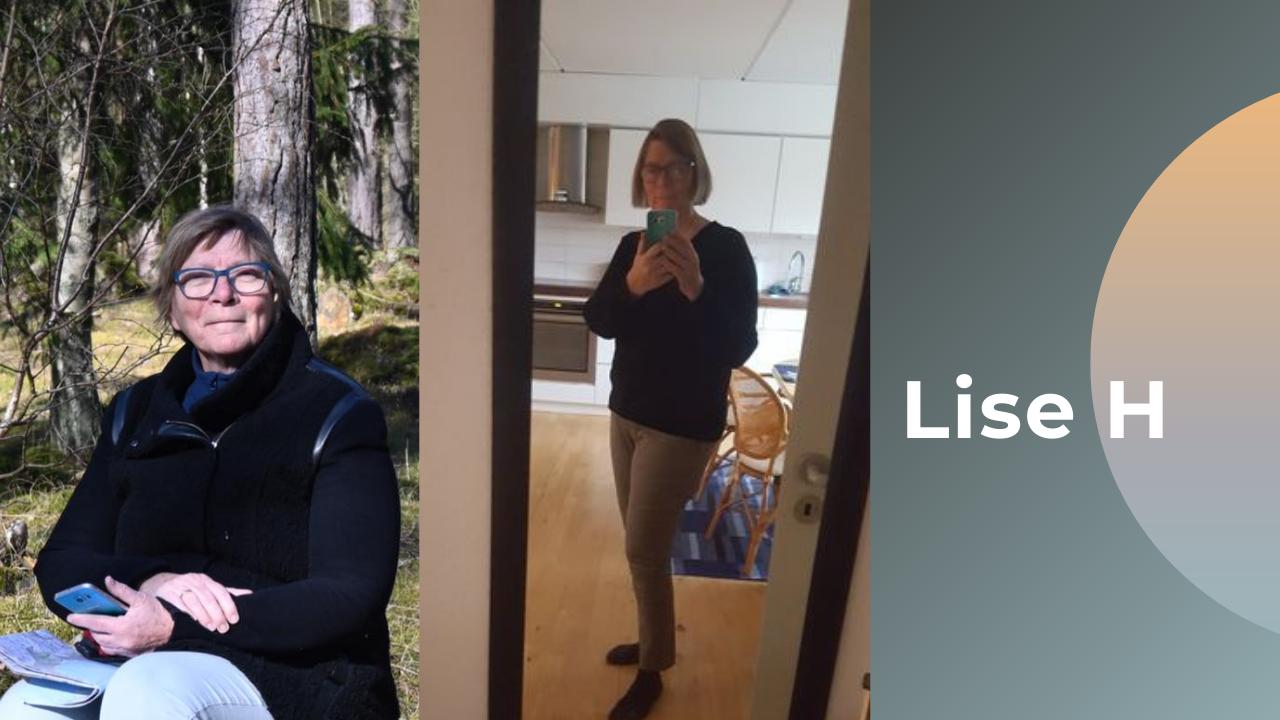 Lise før og efter billede